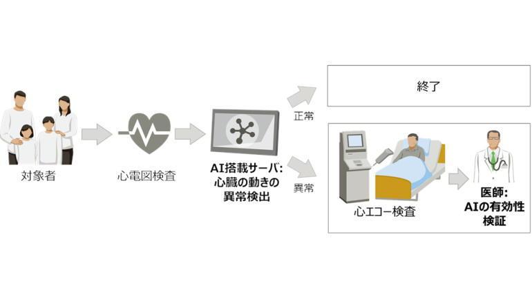 医療DX、心電図データから心臓の動きをAIが推定する