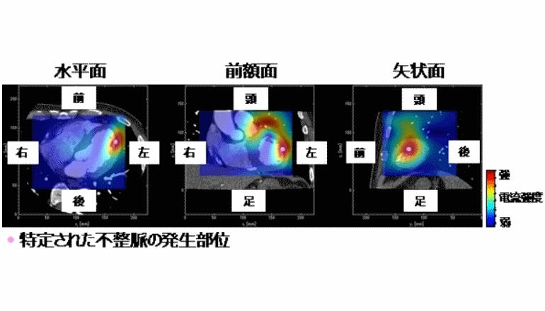 心磁図とCT画像を正確に合成、不整脈治療を受ける体の負担軽減へ