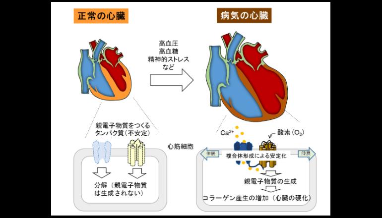抗がん剤による心筋萎縮メカニズムが明らかに
