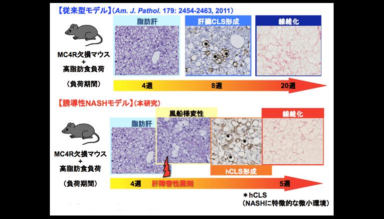 非アルコール性脂肪肝炎の新たな病態メカニズムを解明