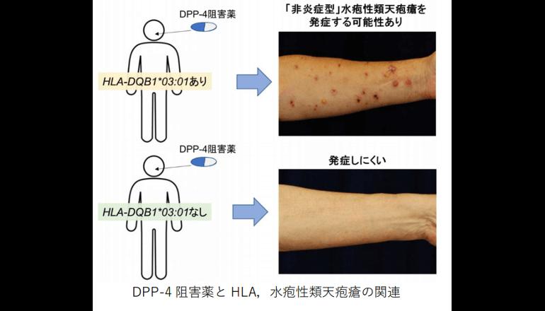 糖尿病の薬で皮膚の難病を発症するリスク因子を発見