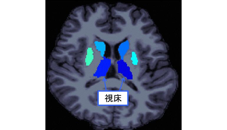 統合失調症の社会機能障害に視床の体積異常が関与