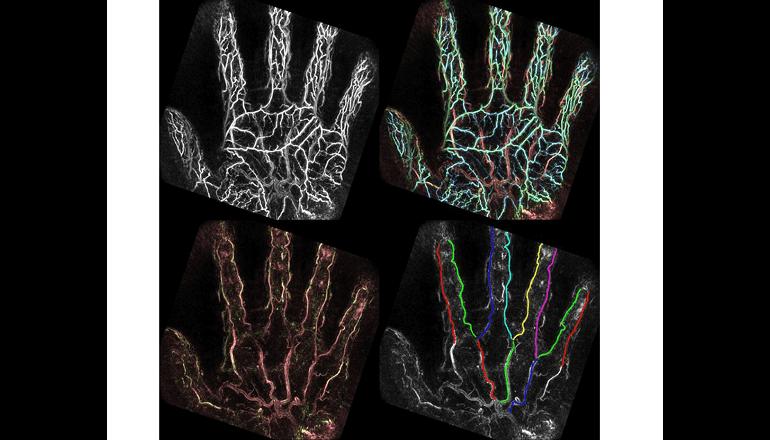 手のひらの血管を科学的に画像にして解析、生活習慣病リスク診断へ