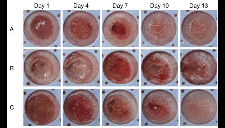 耐性菌を作らない新たな緑膿菌感染治療法