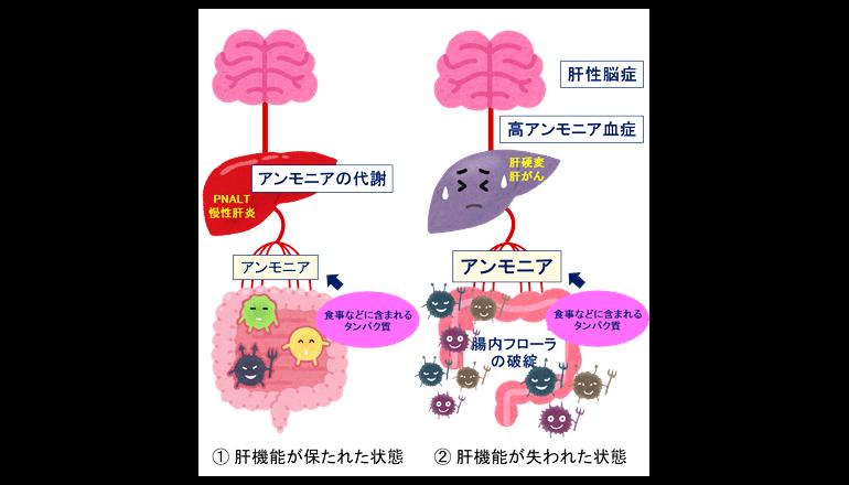腸内フローラ、C型肝炎悪化で破綻することが明らかに