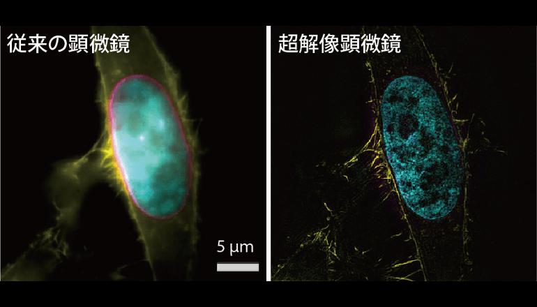 ノーベル・プライズの超解像顕微鏡法、色収差補正で桁違いの精度に!
