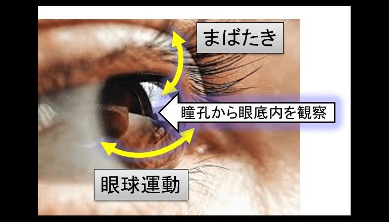 毛細血管もとらえる眼底網膜像で在宅ヘルスケアへも応用