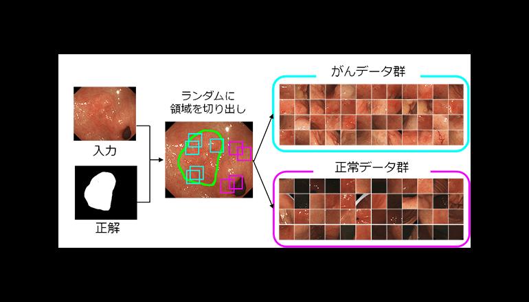 医用画像AI、少ない学習量で早期胃がんを熟練医の如く発見