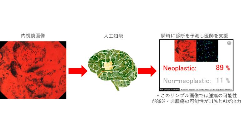AIを搭載した大腸内視鏡診断支援ソフトウェア、薬機法で承認