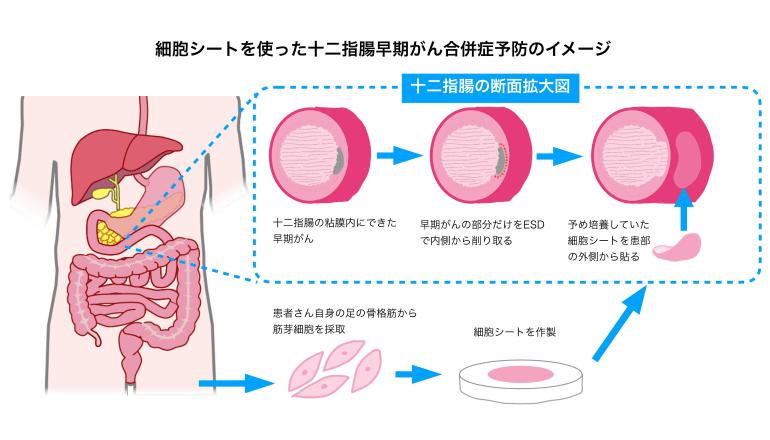 細胞シートを用いた消化器再生医療に向けて