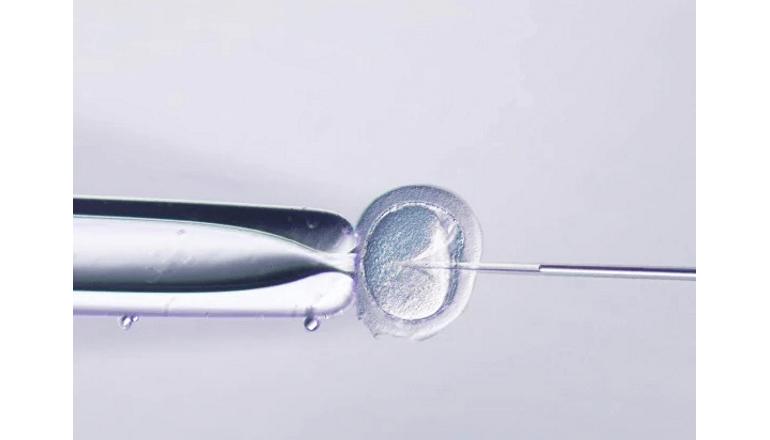 精子判別補助AI開発で顕微授精作業の負荷軽減と均質化を目指す