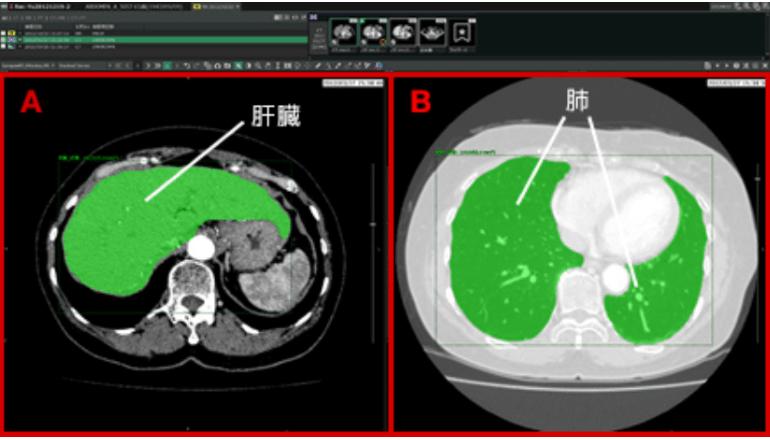 医療向けAI、画像診断を支援するプラットフォームは進化する