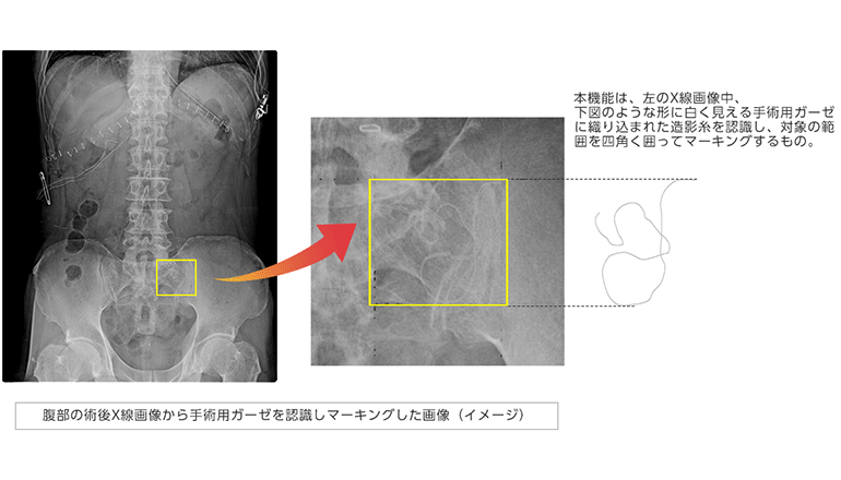 AIにより手術用ガーゼを認識して医療事故を防ぐ