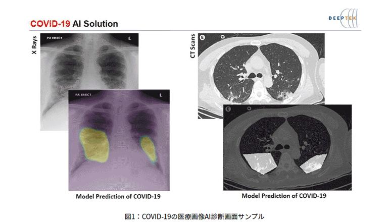 AI画像診断支援、COVID-19と闘うインドの病院から各国へ