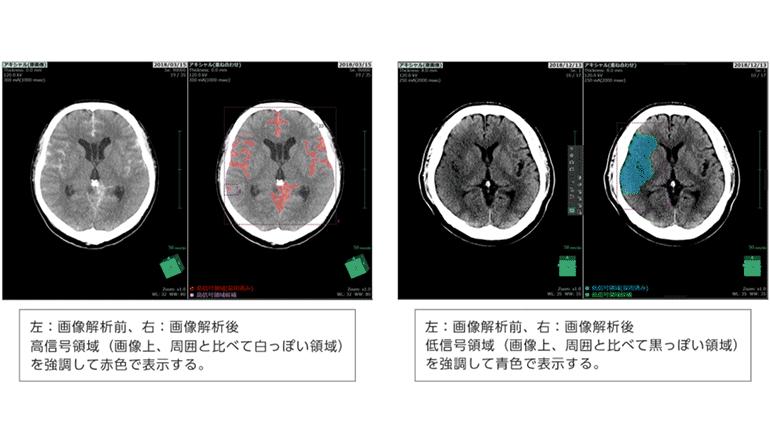 脳卒中の画像診断ワークフローに
