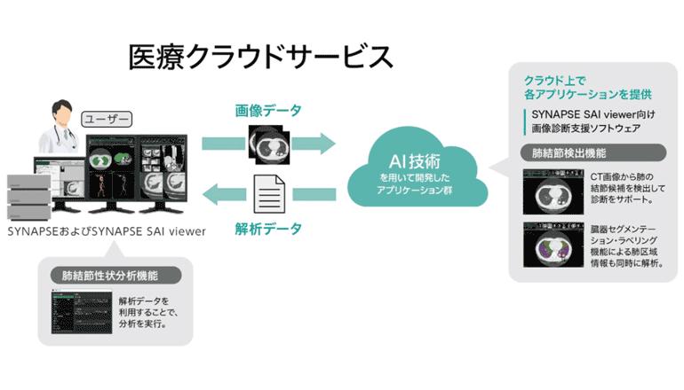 画像診断支援AIアプリ、2機能を医療向けクラウドサービスにて展開