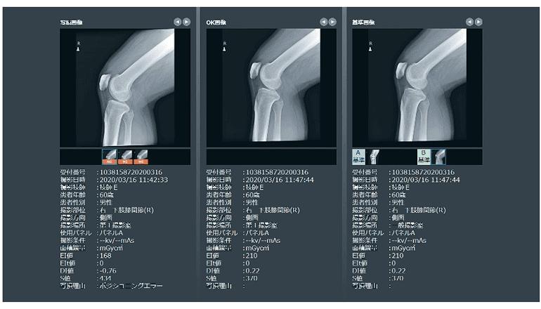 医療業務DX、X線撮影の位置決め等をAIでサポート